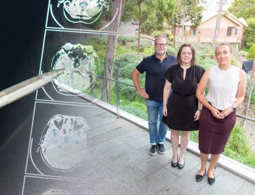 Australian research centre to use Swedish big data in stroke recovery research